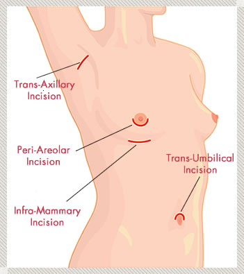 Breast implant incisions locations