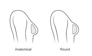 Anatomical vs Round Breast Implant