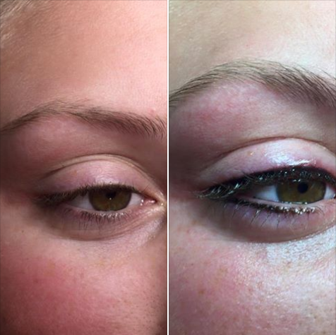 💉Procedure:Permanent Eyeliner 🎯Purpose: Enhance eyelashes 👓How it works: implanting pigments 🎊:Results: immediately 📝Note: Individual Results May Vary 📍Location: 541 N Greenwood Ave Ft. Smith AR. 72901 ✍️Technique: tattoos machine 😴Anesthesia: Topical ⏰Time it takes: 1 hour 📅Recovery: None ⏲Last: Permanent 💣Caution: Must Be Preformed By Experienced Technician 😨Pain Level: Mild 💰Average Cost: Varies In Cost 💁Private Consultation: Free