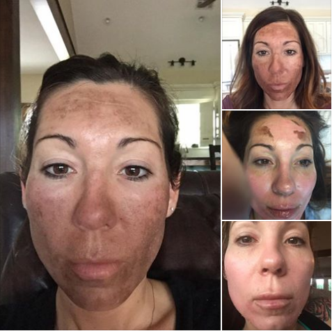 💉Procedure:TCA OBAGI BLUE PEEL/Microbladding/Microneedling 🎯Purpose: To Remove Sun Damage 👓How it works: Using Medical Grade Acid 🎊:Results: Immediate to 2 Weeks 📝Note: Individual Results May Vary 📍Location: 541 N Greenwood Ave Ft. Smith AR. 72901 ✍️Technique: 😴Anesthesia: Topical ⏰Time it takes: 1 Hour 📅Recovery: Up to 2 Weeks ⏲Last: Permanent 💣Caution: Must Be Preformed By Experienced Technician 😨Pain Level: Intense 💰Average Cost: Varies In Cost 💁Private Consultation: Free