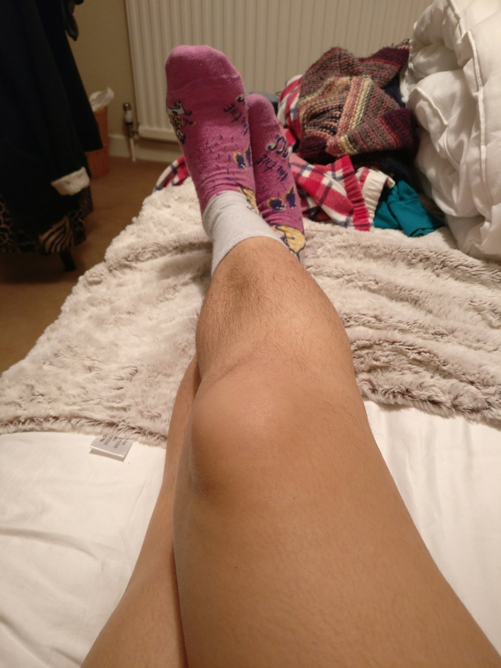 Women hairy have do legs why Why Do