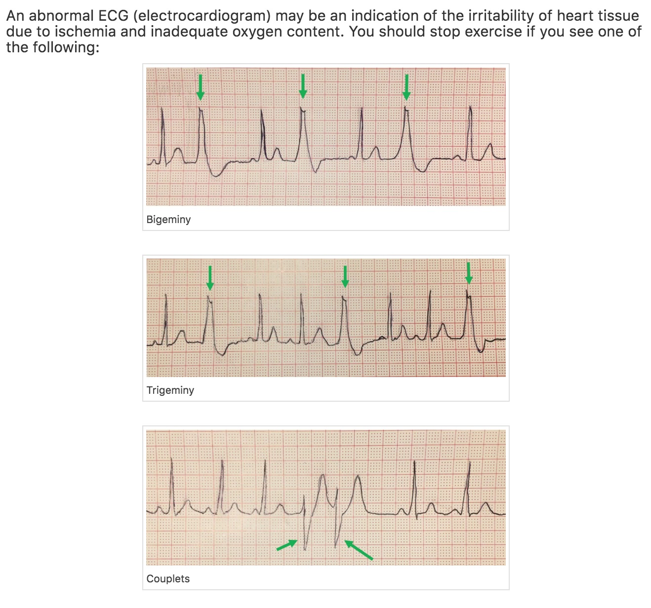 Recognize key ECG patterns for stopping exercise