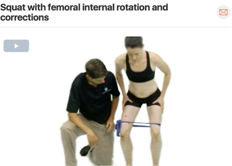 Therapeutic exercises chosen should always closely match treatment given in clinic. It is also important to correct the movement fault to prevent future irritation of the tissue source! This video shows the therapist correcting the patients squatting form. ( Click image to watch 1-2 minute video )