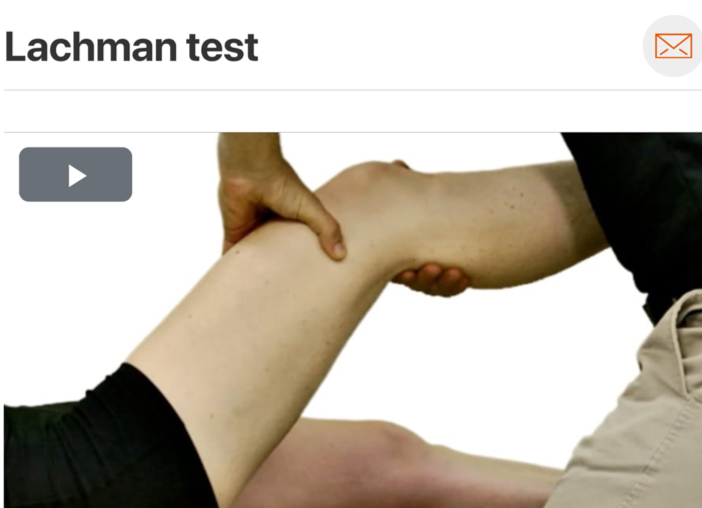 ·      As we all know, one test is not enough to completely rule in or rule out potential pathology; however, the specificity of the Lachman test (94) makes it an excellent test to help rule in ACL pathology!    (Click image to watch 1-2 minute video)