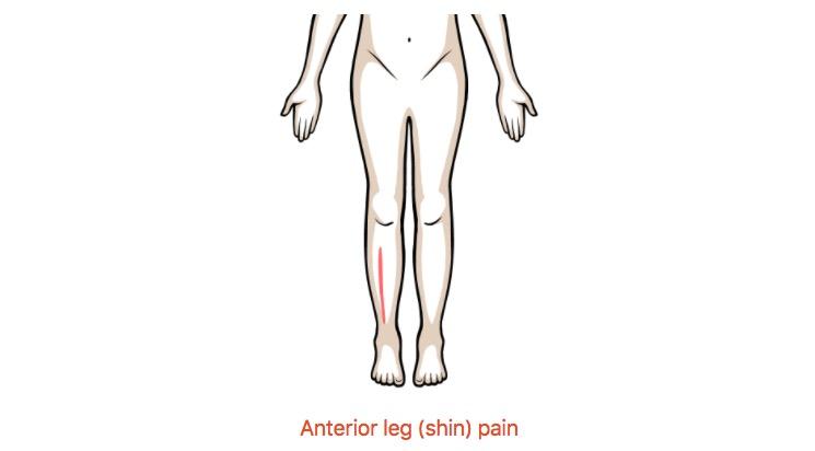 Anterior leg (shin) pain