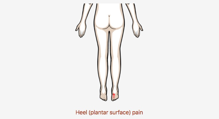 Heel (plantar surface) pain