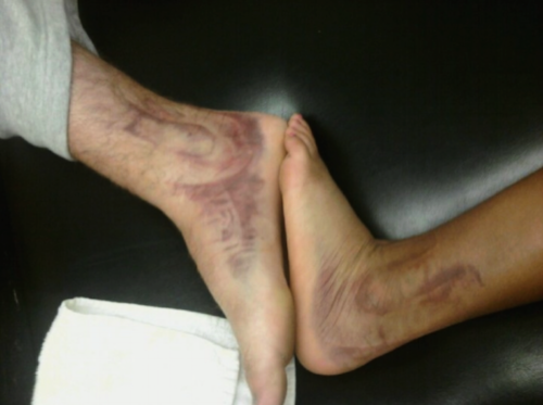 Football player and Cross Country runner with grade III  ankle sprains