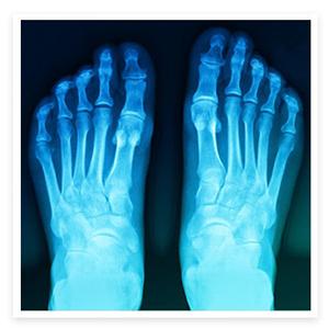 foot-ankle-min.jpg