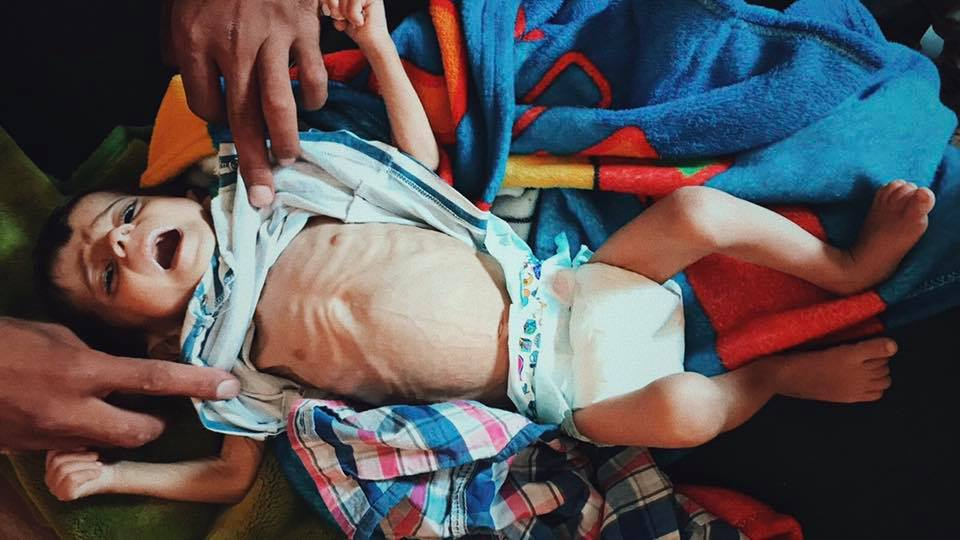 A child recently treated by FAI Relief in Syria