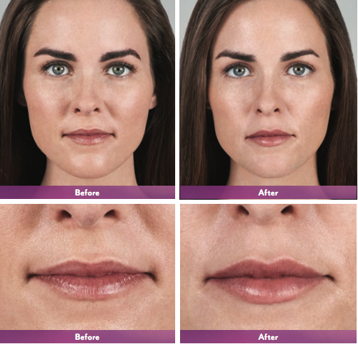 Juvederm Volbella Before & After