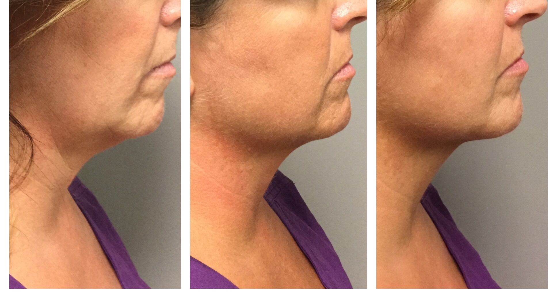 Kybella® before & after - Injected by Terry Selgo, R.N. / 2 session of Kybella®