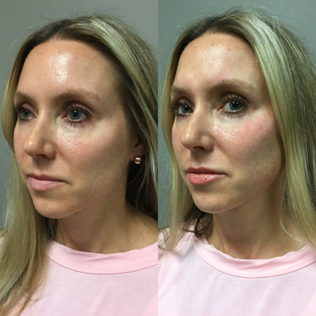 Juvederm Voluma - Cheeks injected by Terry Selgo, R.N.