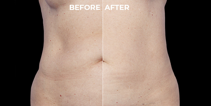 CoolSculpting Before and After on the Abdomen Area