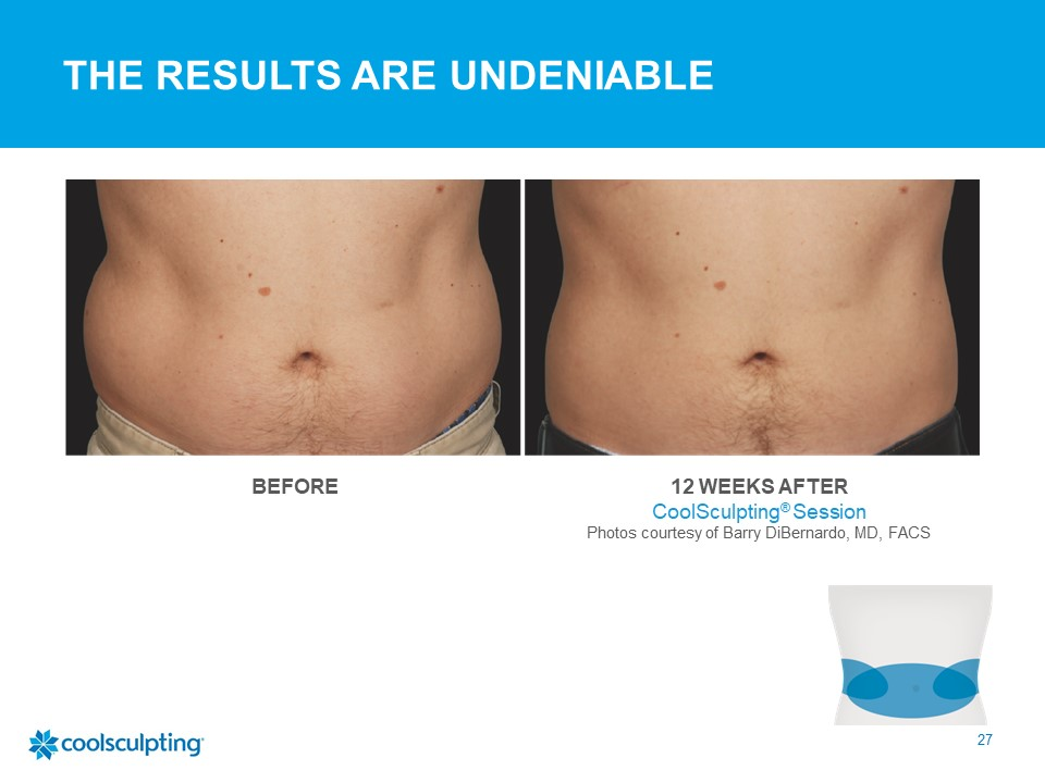mens coolsculpting results 2 sessions