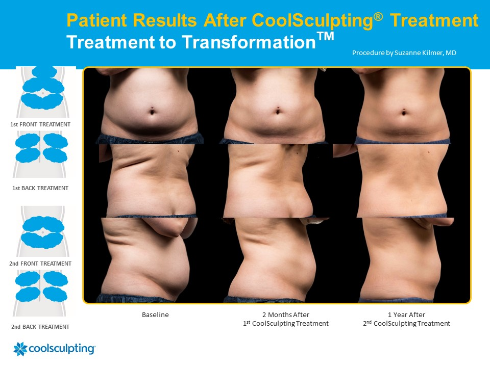 Patient results after coolsculpting treatment. 1 year later.