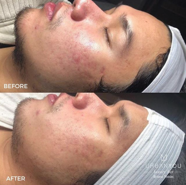 This before (top) and after (bottom) photo is 5 weeks apart from each other. These are real results for Urban You customers. Medical Aesthetician: Briana Tobias.