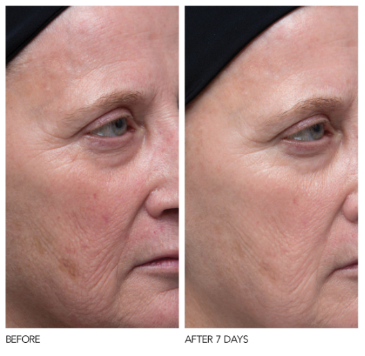 before and after of woman using DDG C + Collagen + Firm Vitamin C Serum