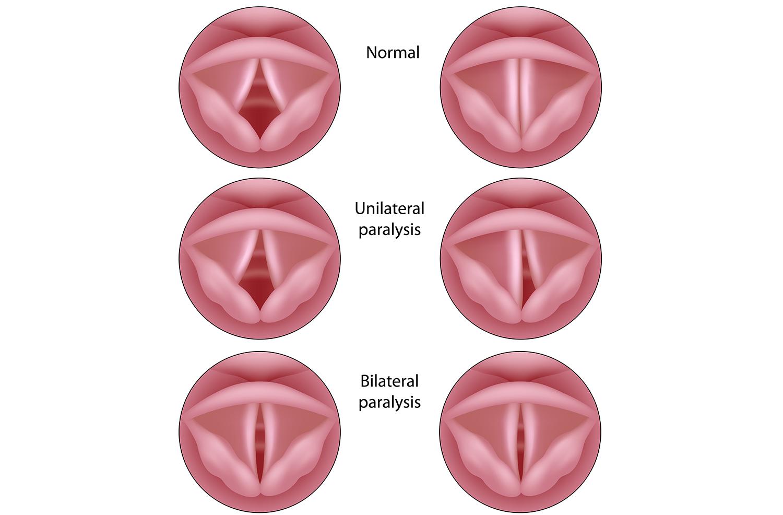 Laryngeal paralysis.png