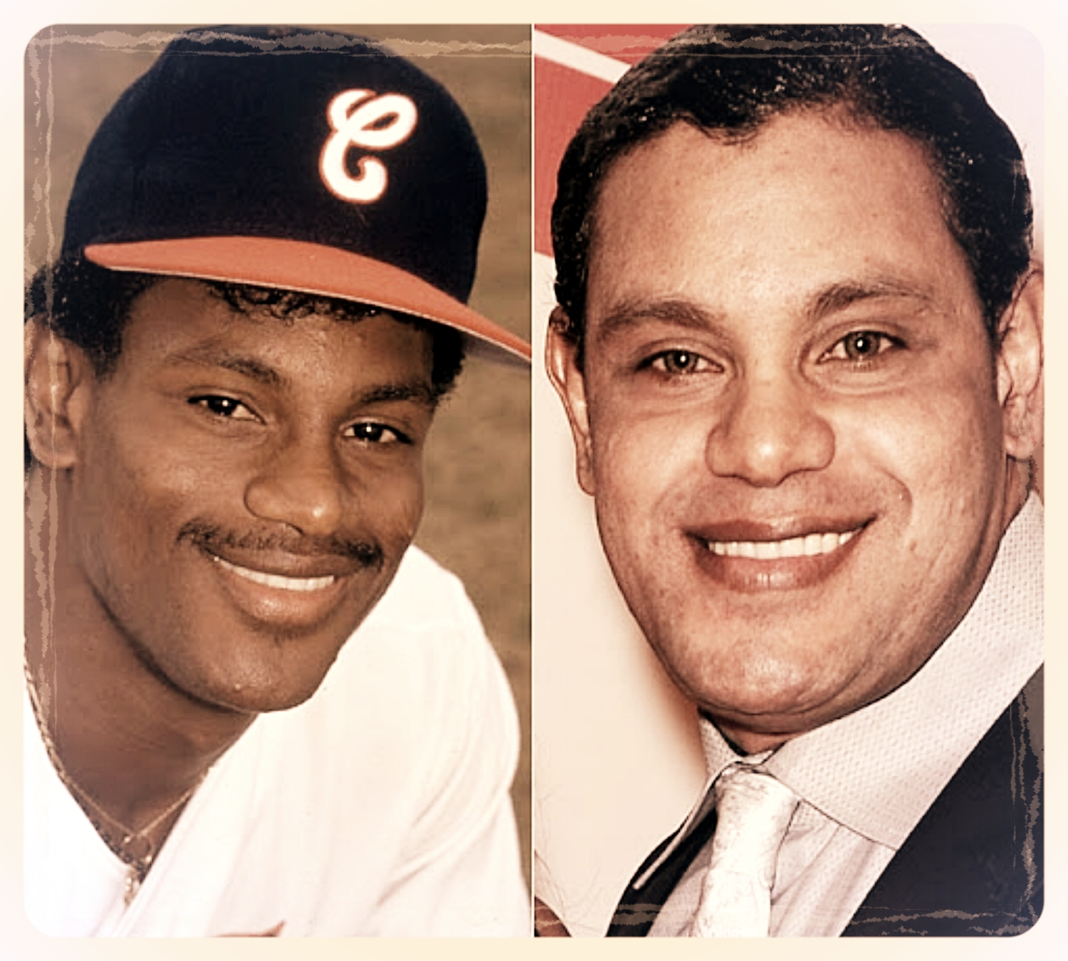 MLB great, Sammy Sosa, before and after