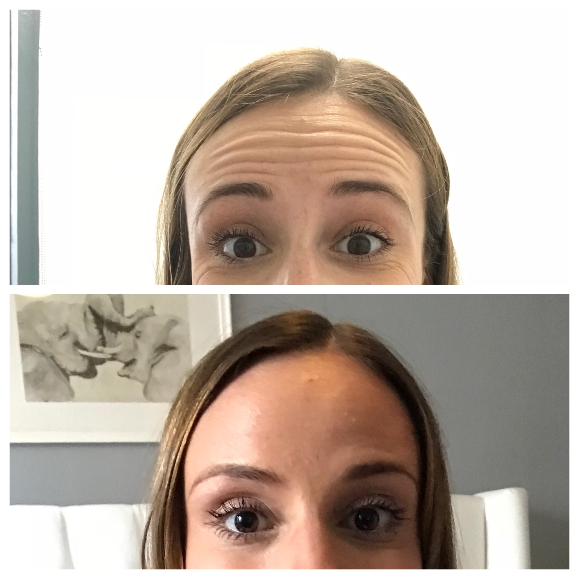 Wrinkle Prevention & Treatment Part 2- Botox! — The Cozy Curator