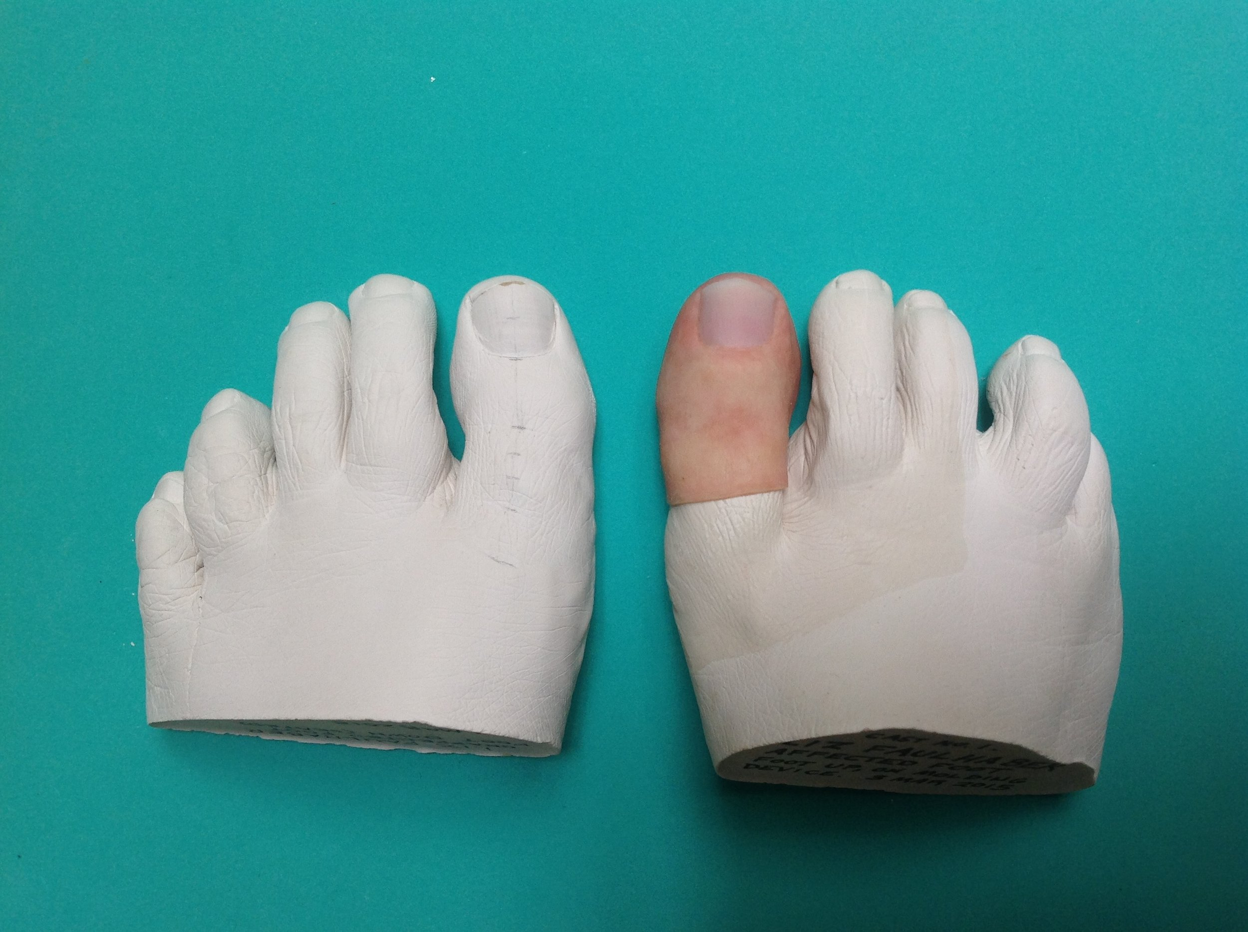 Big Toe Prosthesis