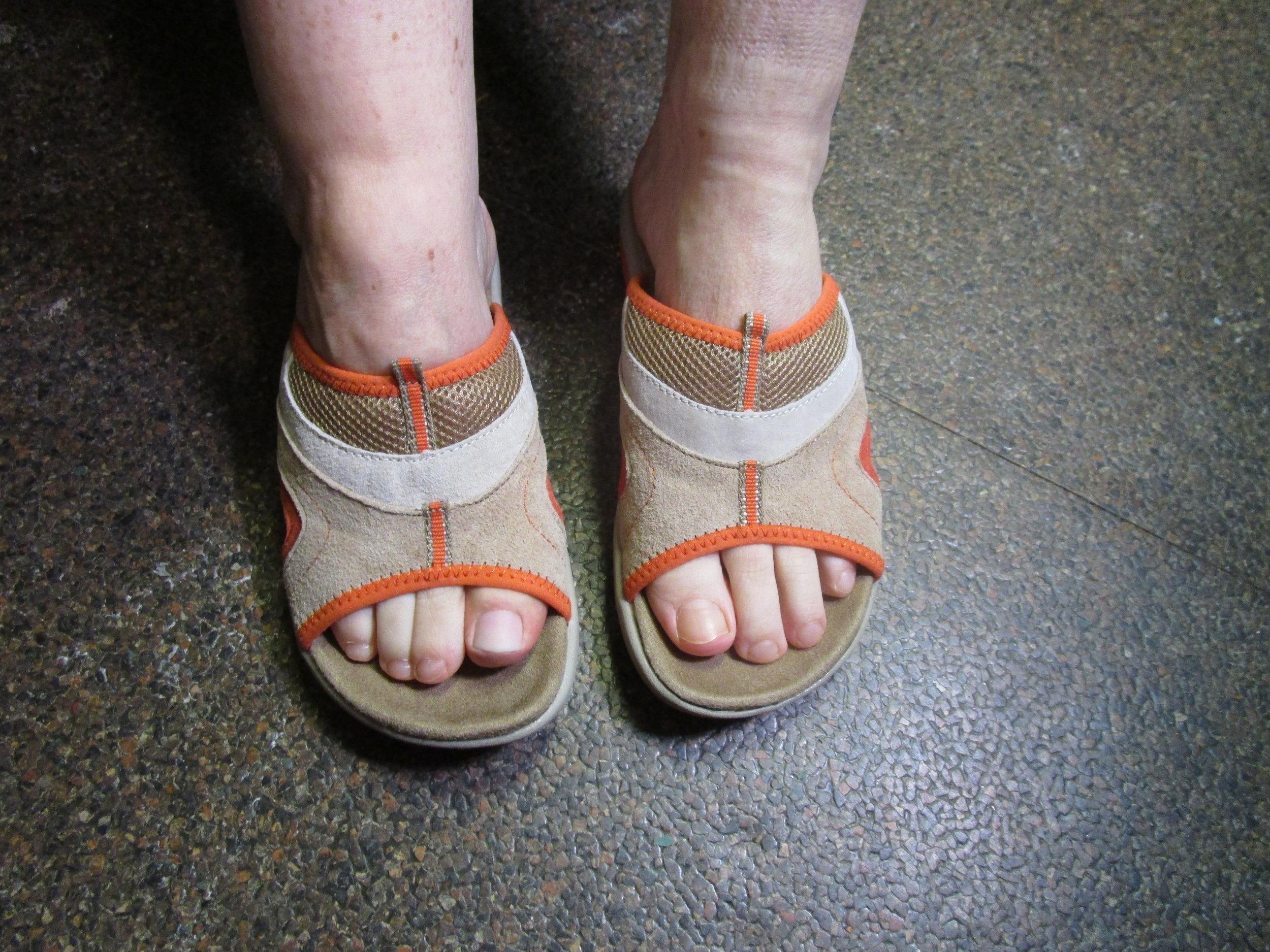 Big Toe Prosthesis on Patient