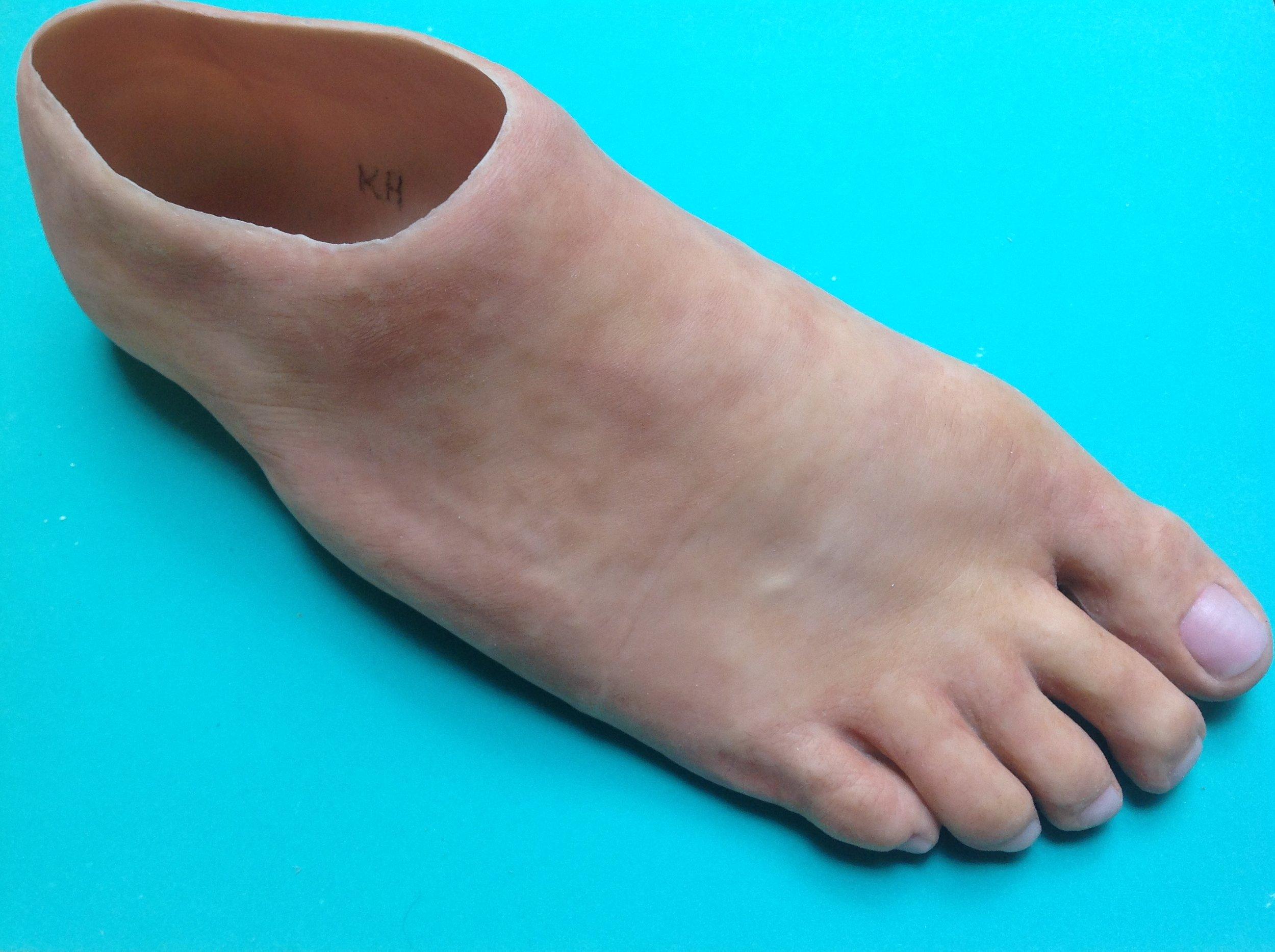 Full Foot Prosthesis