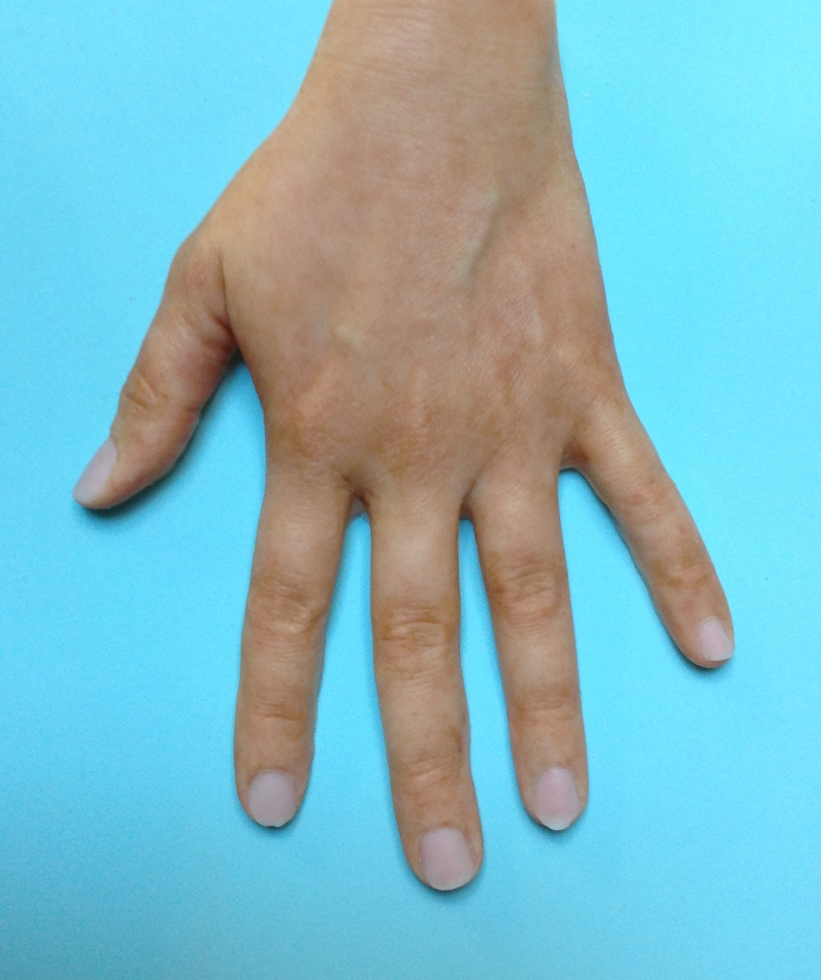 Hand Prosthesis