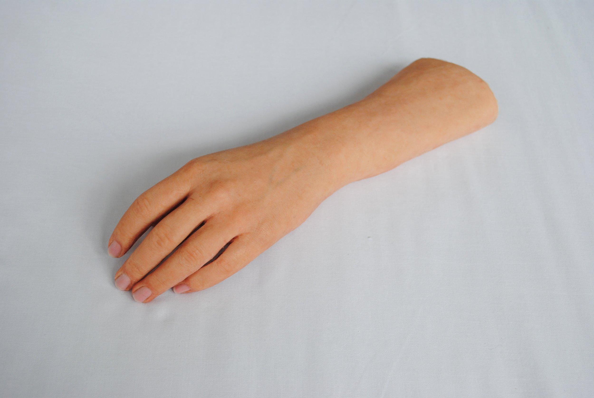 Full Hand Prosthesis