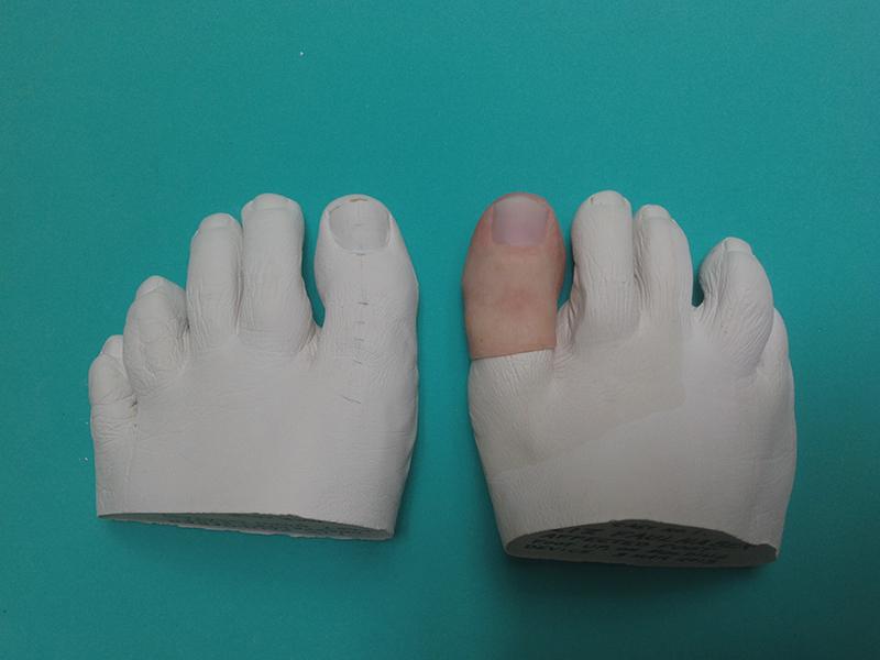 Prosthetics -