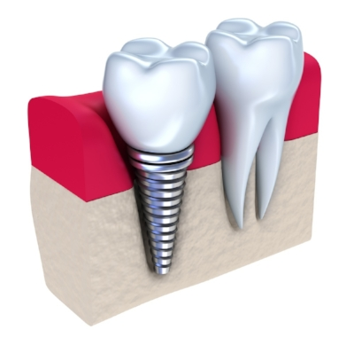 dental implant Metro Dental.jpg