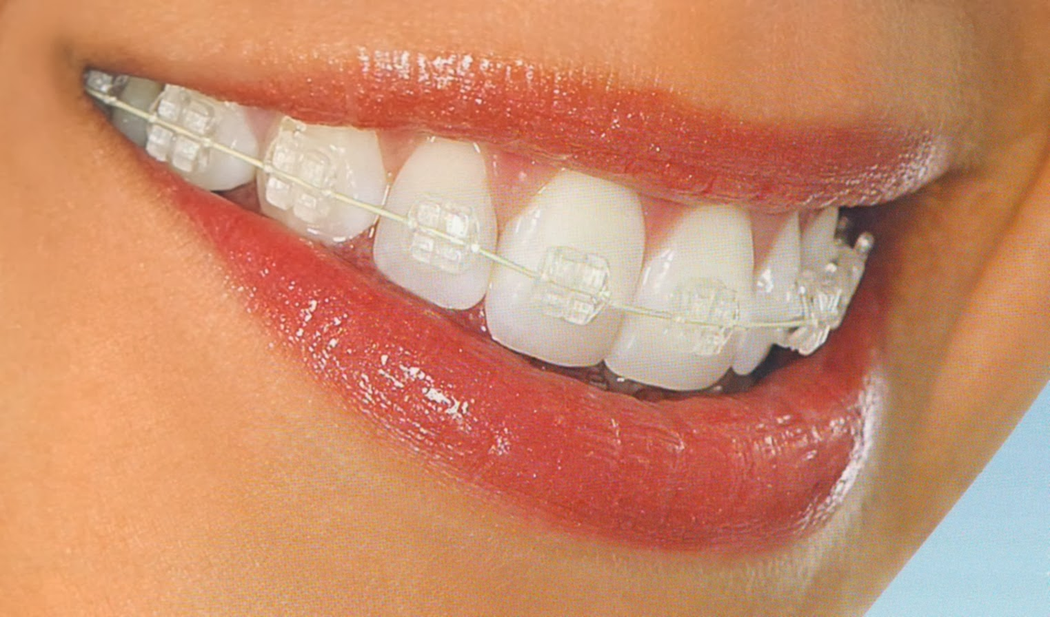clear braces metro dental.jpg