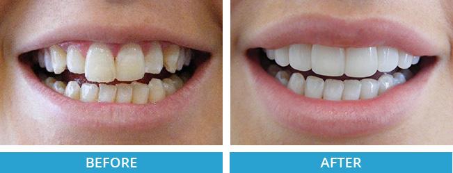 composite veneers before and after.jpg