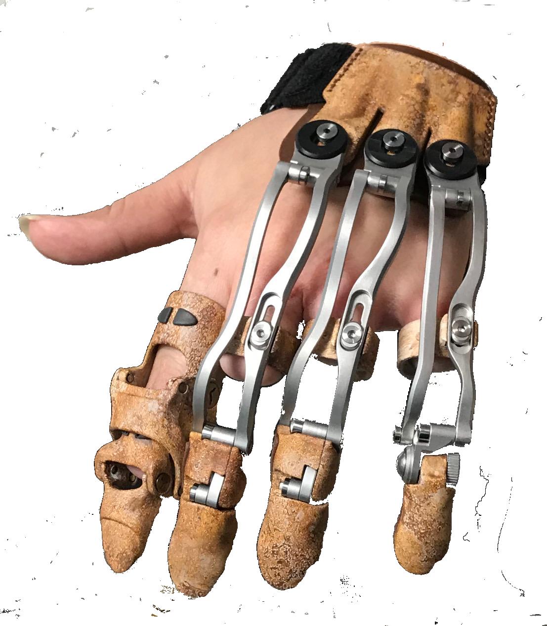 finger prosthesis.png