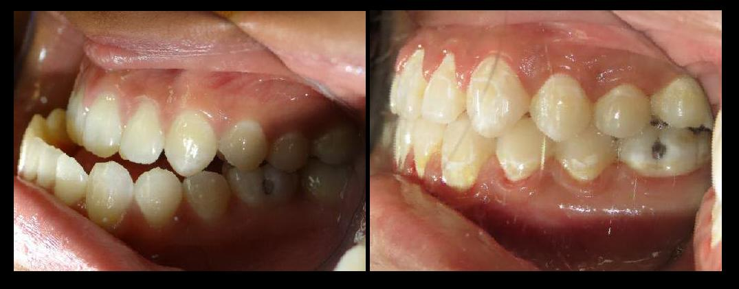 Before & After | Half Moon OMS