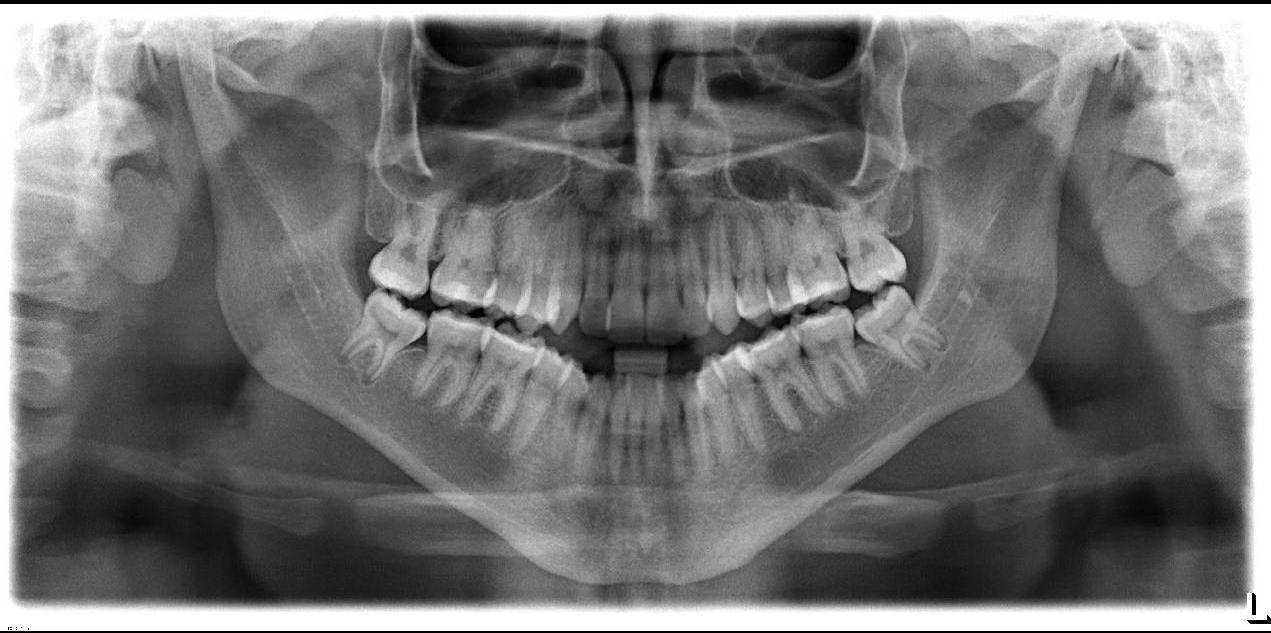 Half Moon Oral & Maxillofacial Surgery | Fort Smith