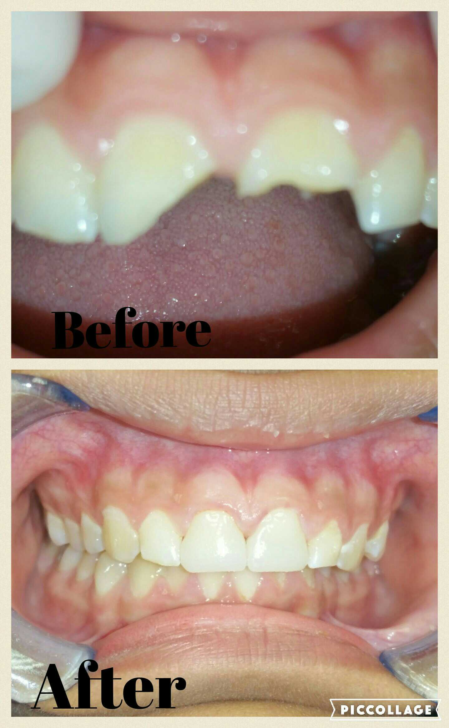 Catherine Irasusta, DMD has a variety of options when it comes to cosmetic dentistry.