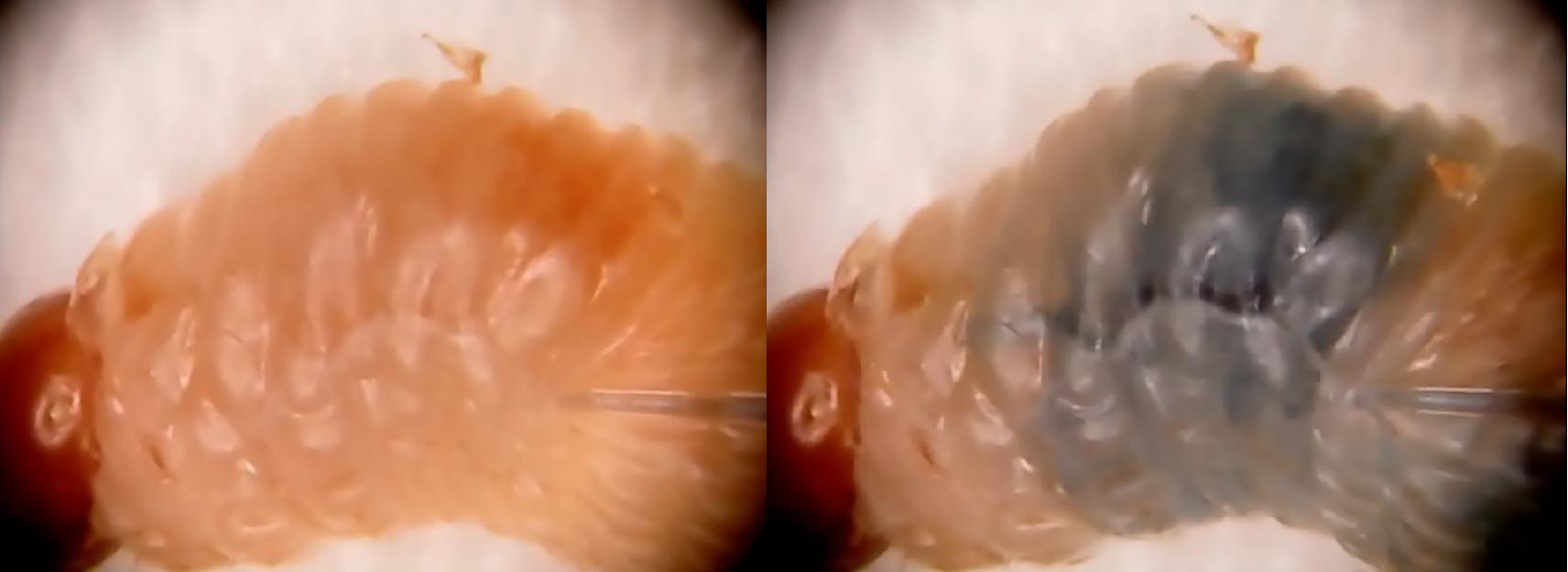 Microinjeção - Qualidade e solidez de resultados