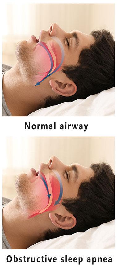 Obstructed-Sleep-Apnea.jpg