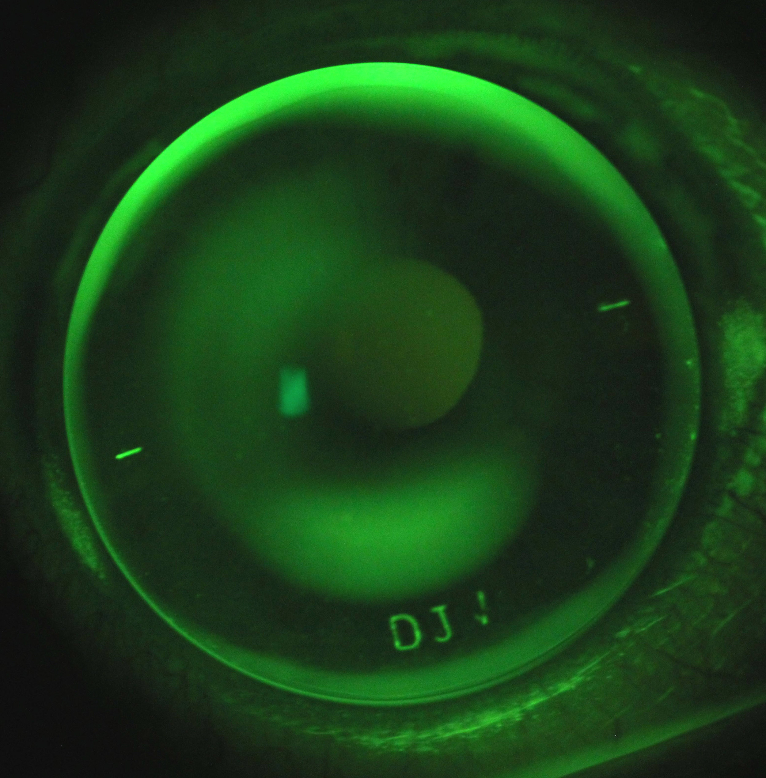 A customised corneal rigid lens for a patient with  keratoconus , viewed under green light.
