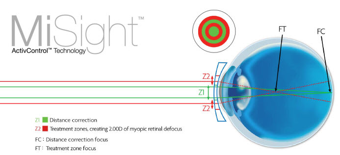 The design of the Misight myopia control soft contact lens.