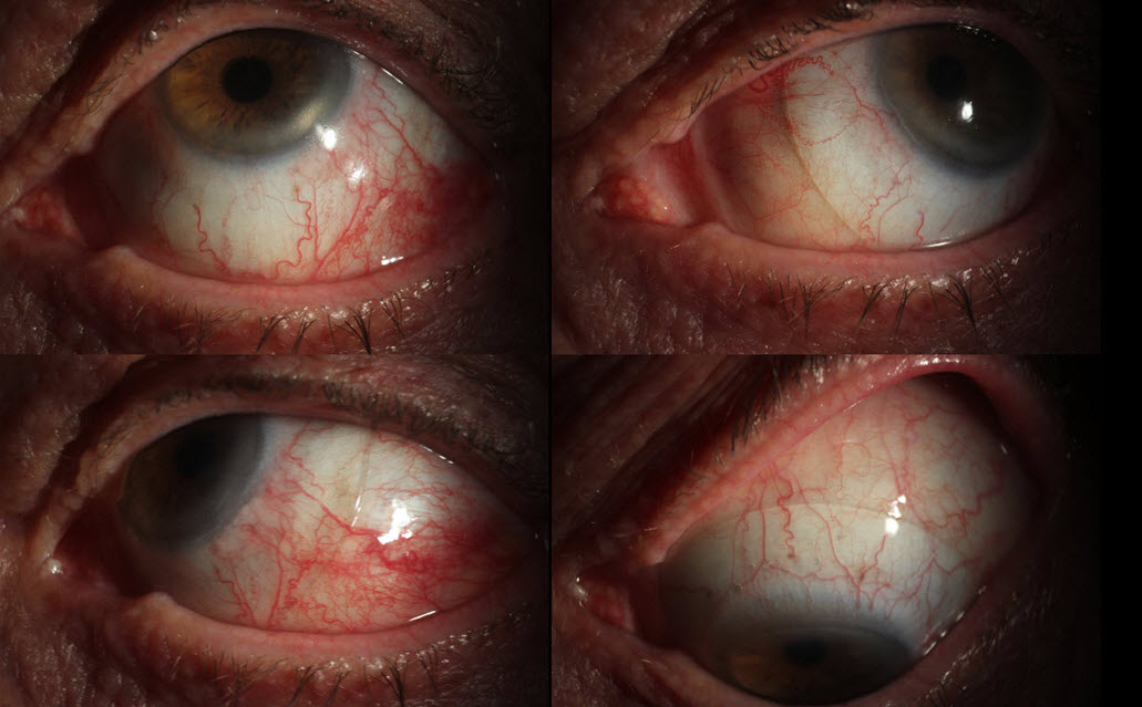 This collection of images shows a large scleral contact lens used by a patient with severe dry eye. This lens allows him to drive and live a more normal life.