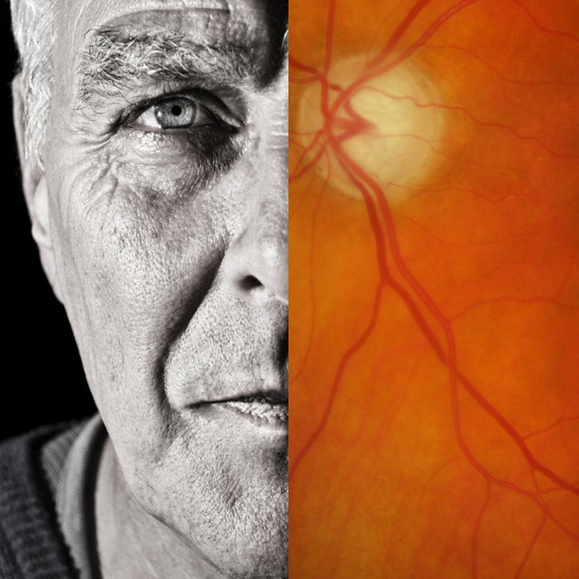 Conditions like glaucoma are more common as we get older and can be present in your eyes without any noticeable symptoms.