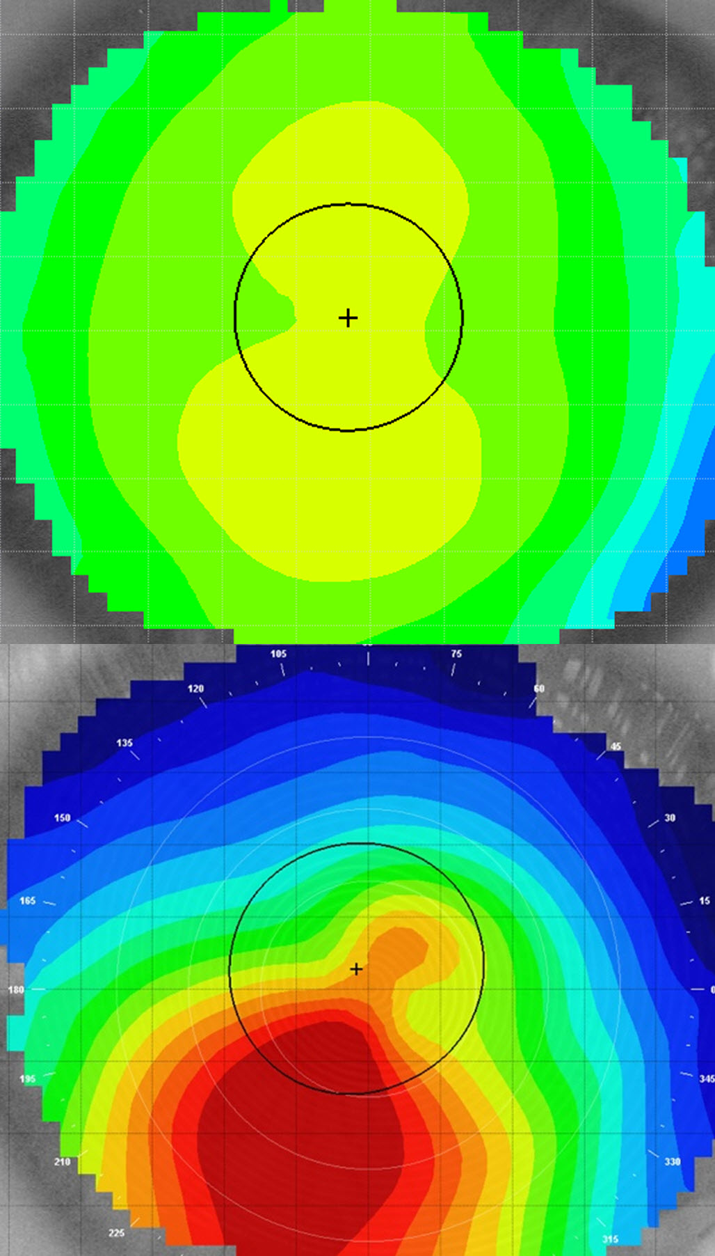 The differnce in the shape of the cornea between a normal eye (top) and keratoconus (bottom).