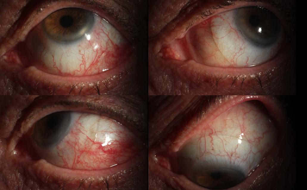 Scleral Lens for Dry Eye