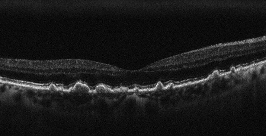 OCT of Age-related Macular Degeneration