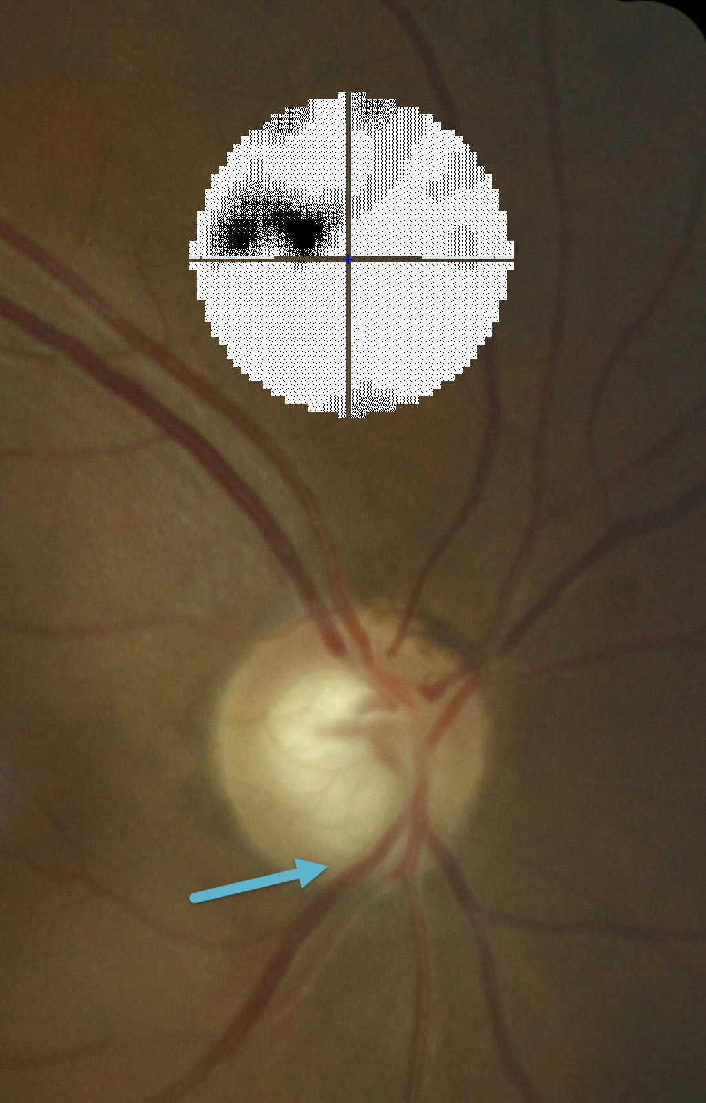 The optic nerve of a person with glaucoma. The blue arrow shows the damaged area of the optic nerve. The black blotches in the graphic shows the vision loss in the top half of this person's sight.