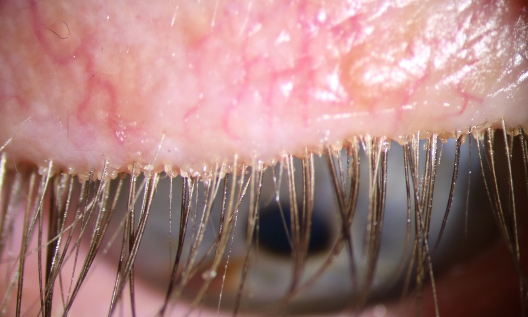 The typical appearance of a patient's eyelid margin with anterior blepharitis.