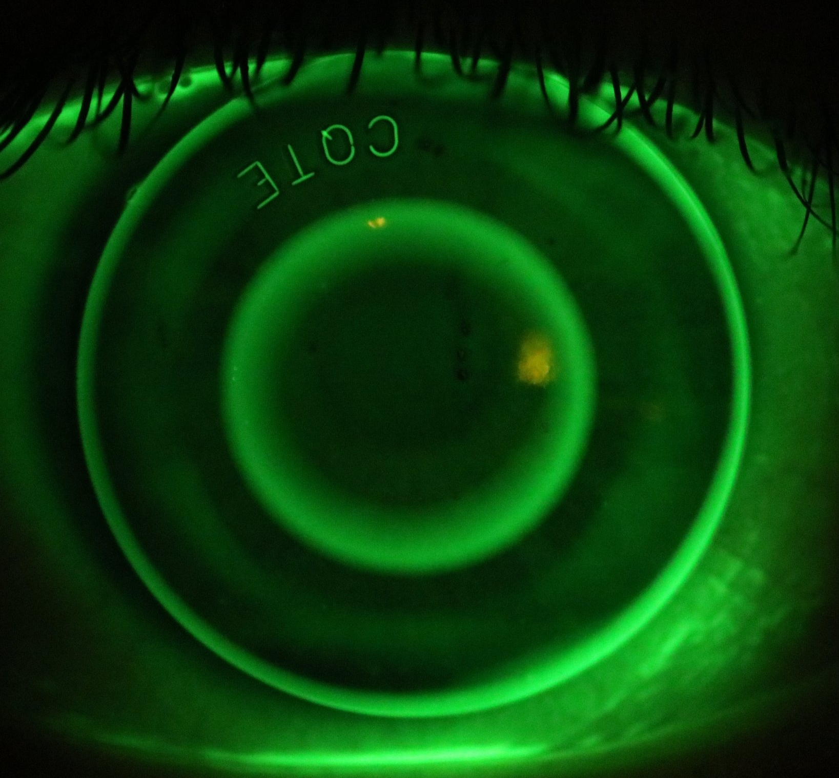 David's Ortho-K lens photographed on his eye.