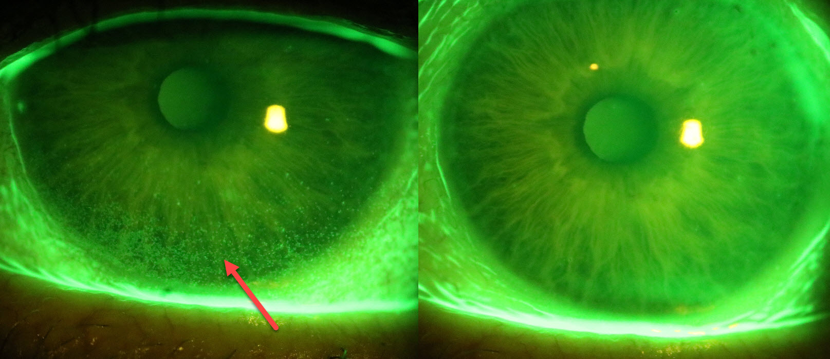 The improvement in this lady's corneal health following IPL treatment. The left photo before treatment shows the significant ocular surface damage as seen by a diagnostic dye (speckled area arrow). This damage is all healed following IPL treatment (right).